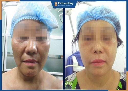 Hình ảnh khách hàng sau khi nâng cơ mặt