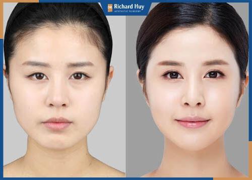 Cằm ngắn sau khi được khắc phục gương mặt được sáng, tỷ lệ gương mặt cân đối hài hòa