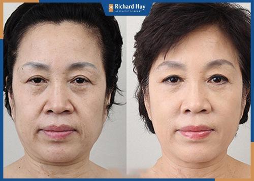 Căng da nội soi phù hợp với những người có tình trạng lão hóa nặng từ 40 tuổi trở đi