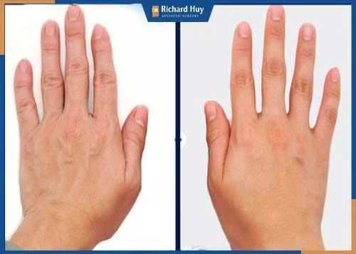 Hình ảnh khách hàng sau khi cấy mỡ Nano Fat tại mu bàn tay