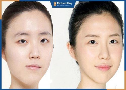 Cách khắc phục khuôn mặt lệch
