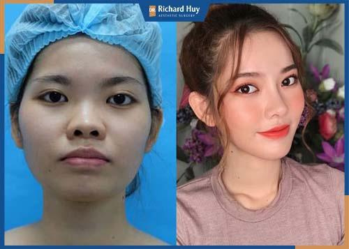 Gương mặt trái xoan thon gọn, quyến rũ sau phẫu thuật