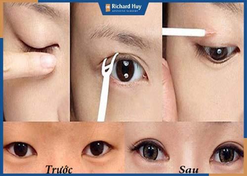 Sử dụng kỹ thuật kích mí giúp đôi mắt to, 2 mí rõ nét