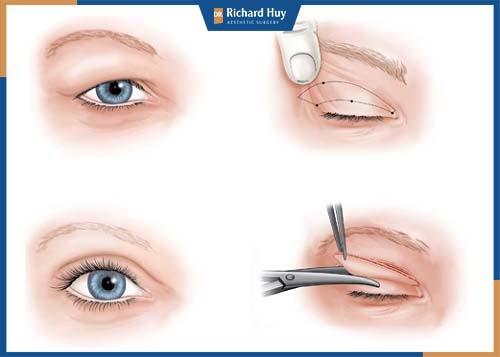 Mô phỏng kỹ thuật cắt mí mắt bồ câu