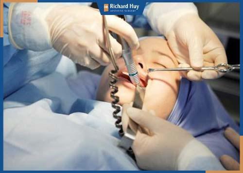 Bác sĩ tiến hành rạch phía trong khoang miệng, sau đó gọt giũa xương cằm