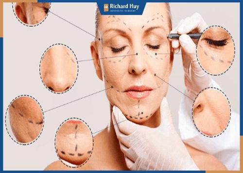 Nâng cơ mặt trẻ hóa làn da là phương pháp được nhiều chị em tin dùng