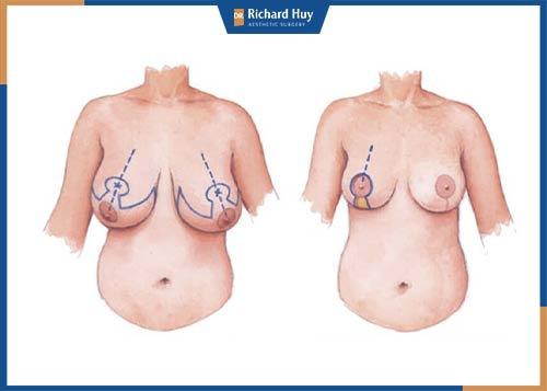 cách làm nhỏ ngực tự nhiên