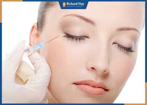 Kỹ thuật tiêm botox chỉ có hiệu quả trong vòng 3 đến 4 tháng