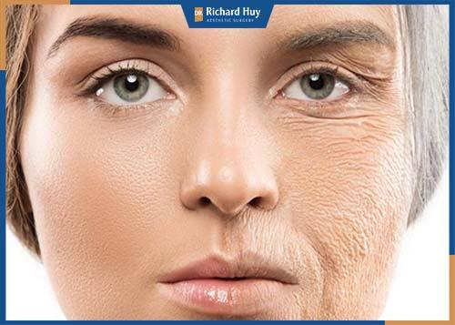 Tình trạng bệnh viêm khớp thái dương, viêm khớp hàm khiến phần hàm dưới lẹm vào trong