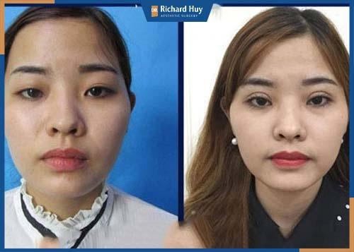 Phương pháp loại bỏ mỡ thừa, da chùng ở mí mắt tạo đường mí rõ và đều hơn