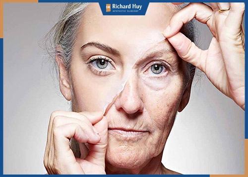 Nâng cơ mặt giúp trẻ hoá làn da một cách hiệu quả
