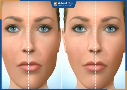 Cách khắc phục mặt lệch không cần phẫu thuật