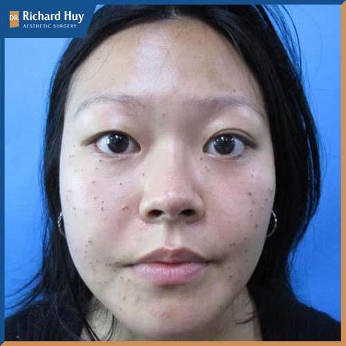 Mắt to, mắt bé không đồng đều làm mất cân đối trên gương mặt