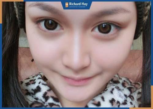 Đôi mắt quá to so với tổng thể gương mặt, khó chịu với người đối diện