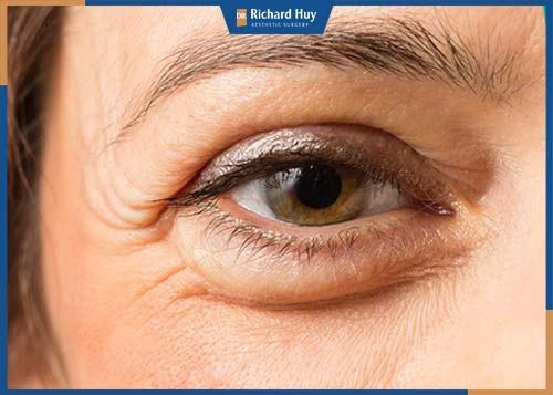 Sau độ tuổi 30 lượng collagen và elastin quyết định sự đàn hồi trên da bị suy giảm