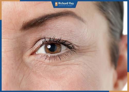 Mí mắt trên bị chùng xuống, mỡ mí mắt dày, bọng mắt thâm tạo cảm giác mệt mỏi, thiếu sức sống trên gương mặt.