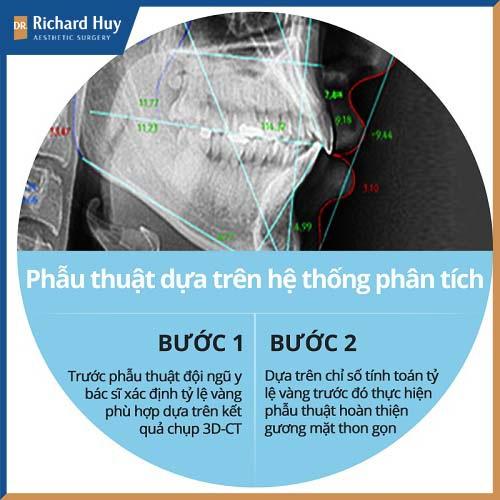 Mô phỏng phẫu thuật gọt hàm mặt vuông an toàn hiệu quả
