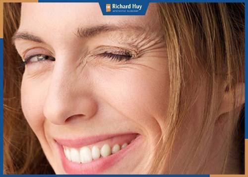Da nhăn nheo ở khóe miệng, rãnh mũi má khi cười