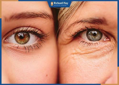 Mắt là nơi xuất hiện nếp nhăn đầu tiên, khiến gương mặt già nua