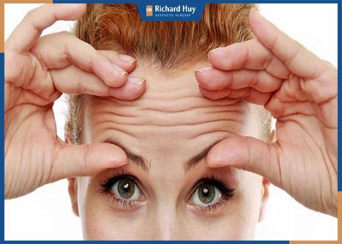 Nếp nhăn trên trán phụ nữ xuất hiện nhiều sau tuổi 35