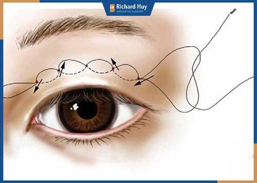Nhấn mí bằng chỉ là phương pháp tạo mắt 2 mí hiệu quả, an toàn