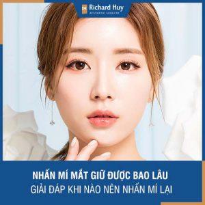 Nhấn mí mắt giữ được bao lâu - Dr. Richard Huy giải đáp khi nào nhấn mí lại