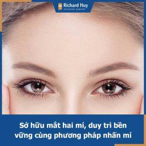 Tìm hiểu về phương pháp nhấn mí bằng chỉ cùng Dr. Richard Huy