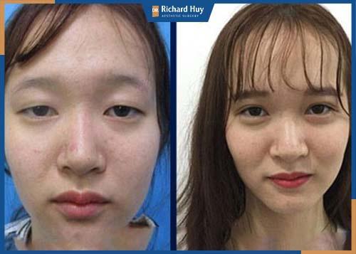 Phẫu thuật thẩm mỹ giải quyết triệt để đôi mắt híp, buồn ngủ trả lại đôi mắt to hai mí sắc sảo