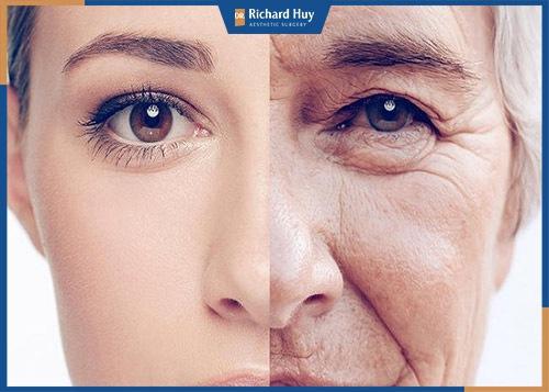 Mắt, mũi, khóe miệng là nơi xuất hiện lão hóa đầu tiên trên gương mặt