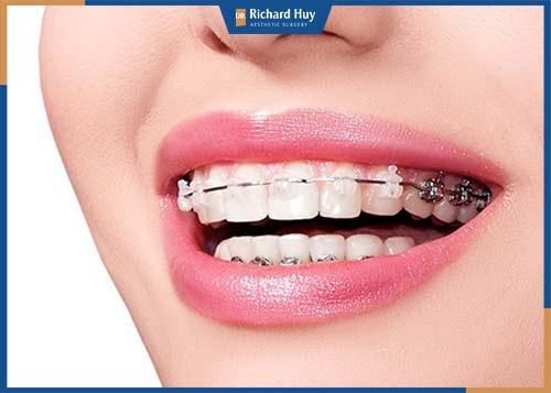 Niềng răng có thể cải thiện tình trạng cằm ngắn nhẹ