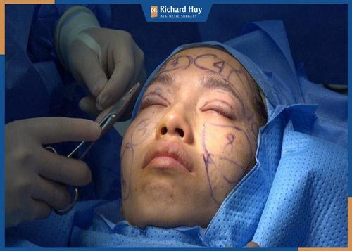 Phan Thị May bắt đầu bước vào ca phẫu thuật