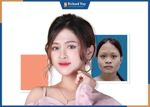 Cằm sau khi phẫu thuật hài hòa với tỷ lệ gương mặt, không còn bị thô cứng giúp gương mặt có đường nét trở nên mềm mại nữ tính hơn.