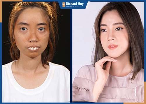 Hình ảnh khách hàng sau một tháng phẫu thuật hàm hô, mang lại hiệu quả nhanh chóng