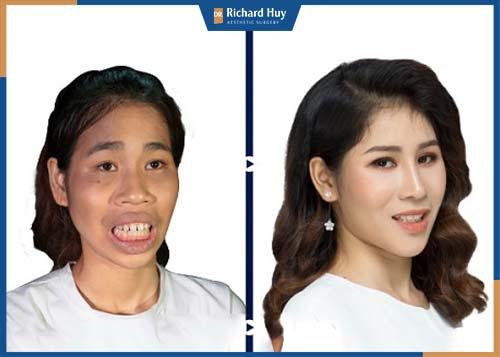 Khách hàng sau khi phẫu thuật, gương mặt trở nên cân đối và thu hút ánh nhìn
