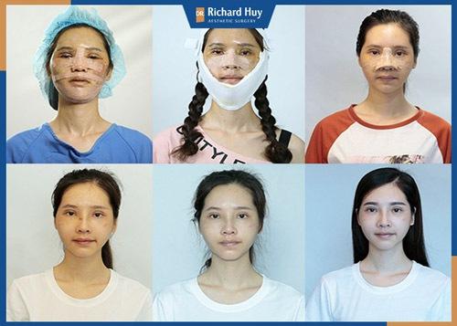 Quá trình hồi phục và kết quả bất ngờ về nhan sắc của Phan Thị May