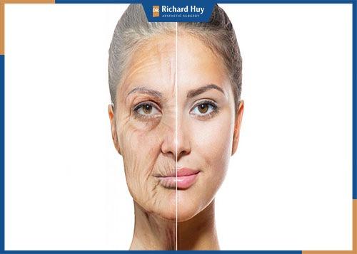 Các phương pháp căng da mặt tự nhiên tại nhà