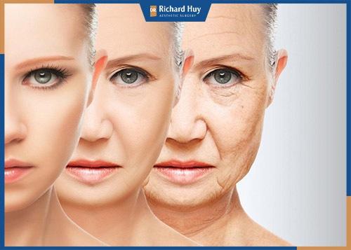 Quá trình lão hóa khiến mỡ tích tụ lại ở bọng mắt