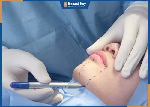 Bác sĩ tiến hành rạch một đường nhỏ dài từ một đến hai cm ở đỉnh giữa cằm, tạo đường ngăn đôi chẻ cằm thành 2 phần cân đối.
