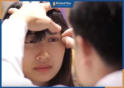 Tay nghề của bác sĩ là yếu tố quyết định mí mắt có được đẹp tự nhiên sau phẫu thuật hay không.