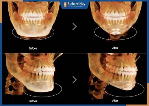 Điều chỉnh lại cấu trúc xương: Xương hàm, xương cằm, xương gò má, xương cành ngang sẽ được bác sĩ can thiệp.