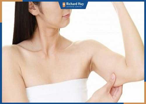 Hậu hút mỡ bắp tay sẽ không để lại sẹo
