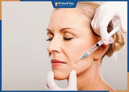 Thủ thuật này sau khi tiêm lên da giúp làm giảm nếp nhăn ở rãnh mũi má hiệu quả, làm đầy phẫu rãnh nhăn trên gương mặt