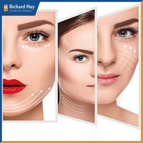 Căng da mặt nội soi được sử dụng rộng rãi giúp làm trẻ hóa gương mặt, kéo lại tuổi thanh xuân đã đánh mất