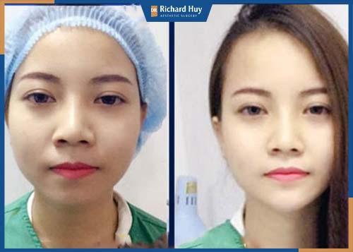 Gương mặt tự nhiên, không gượng gạo mất tự nhiên. Đường nét tự nhiên, chất làm đầy sẽ điều chỉnh theo cử chỉ của cơ mặt.