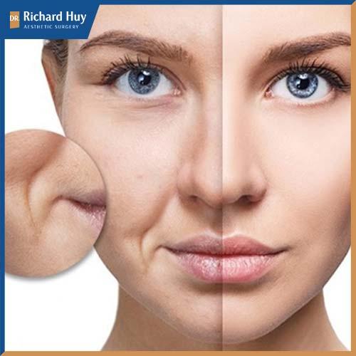Rãnh mũi má gây mất thẩm mỹ, thiếu tự tin trong cuộc sống