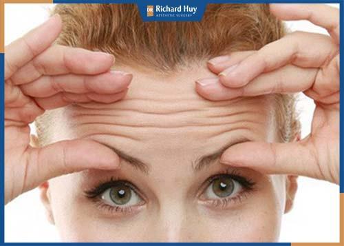 Nhăn mặt, tâm trạng không tốt, cau có, stress khiến vết nhăn trán xuất hiện sớm hơn.