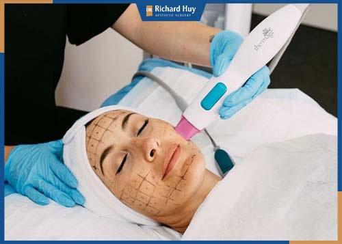 Kết hợp sóng siêu âm và sóng RF giúp nâng cơ chùng nhão, làm đầy nếp nhăn rãnh mũi má chùng xệ, thúc đẩy quá trình sản sinh collagen và elastin