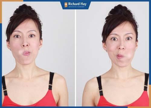Phồng má kết hợp chu môi sau đó hóp má giúp cơ mặt hoạt động linh hoạt hơn