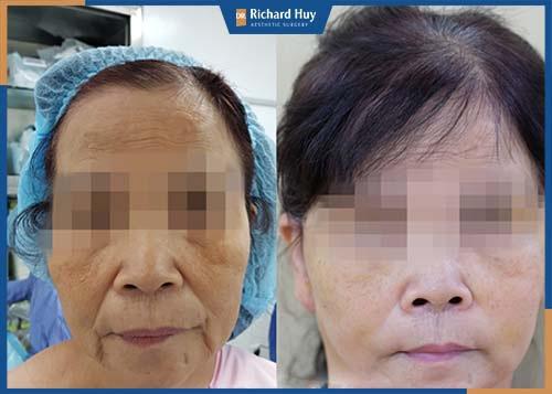 Biến chứng má chảy xệ khiến gương mặt già nua