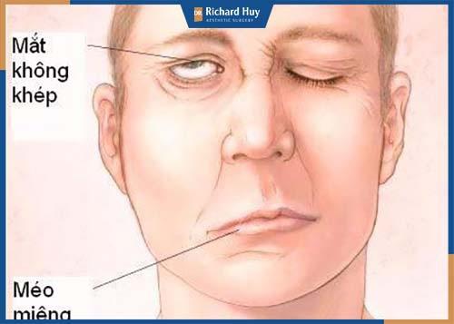 Biến chứng méo miệng do xâm lấn quá sâu ảnh hưởng tới dây thần kinh miệng